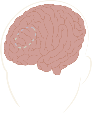 Transcranial_Magnetic_Stimulation_TMS_Therapy_at_Modalis