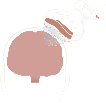 Transcranial_Magnetic_Stimulation_TMS_Therapy